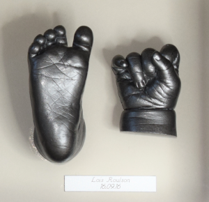 3D-Cast-hands-and-feet-small-lois
